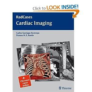 Cardiac Imaging (RadCases)