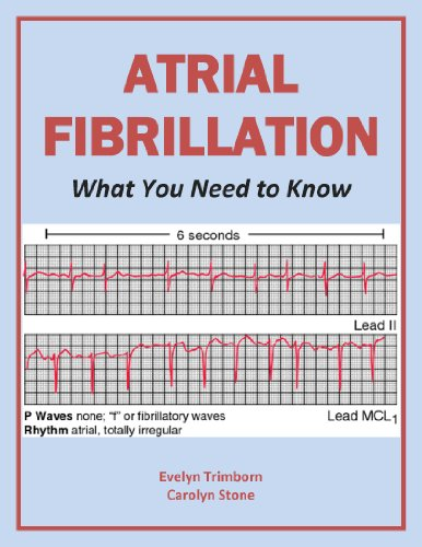 Atrial Fibrillation: What You Need to Know (Health Matters)