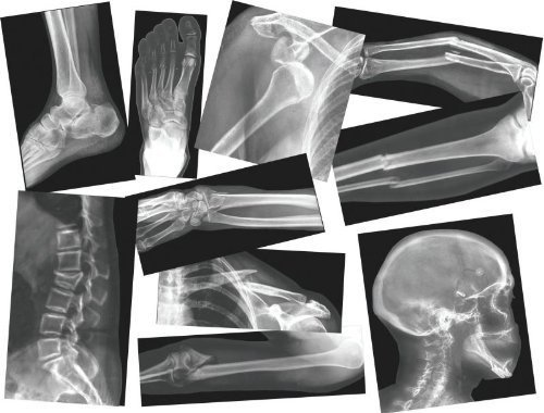 Roylco R-5914 Broken Bone Compound Fracture X-Rays
