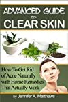 Advanced Guide to Clear Skin: How To Get Rid of Acne Naturally with Home Remedies That Actually Work