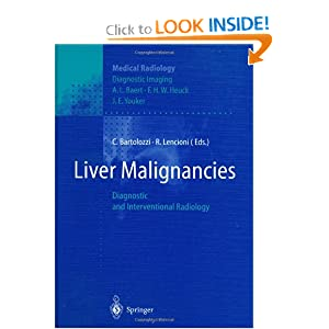 Liver Malignancies: Diagnostic and Interventional Radiology (Medical Radiology / Diagnostic Imaging)