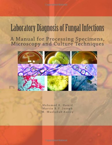 Laboratory Diagnosis Of Fungal Infections: A Manual For Processing Specimens, Microscopy And Culture Techniques