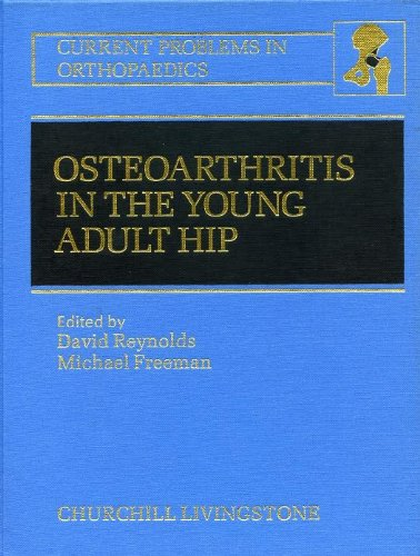Osteoarthritis in the Young Adult Hip: Options for Surgical Management (Current Problems in Orthopedics) ****, David Reynolds
