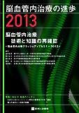 脳血管内治療の進歩 2013 脳血管内治療ー技術と知識の再確認