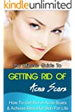 The Ultimate Guide To Getting Rid Of Acne Scar - How To Get Rid Of Acne Scar & Achieve Beautiful Skin For Life (Skin Care, Oily Skin, Oily Skin Problems, Skin Problems) (English Edition)