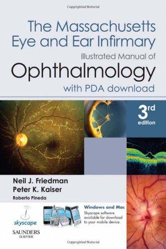 Blepharitis Dry Eye