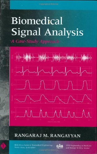 Biomedical Signal Analysis: A Case-Study Approach (IEEE...