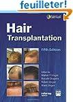 Hair Transplantation, Fifth Edition