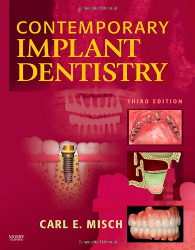 Contemporary Implant Dentistry, 3e PDF