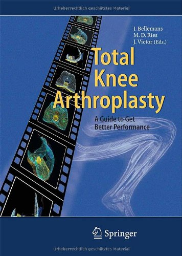 Total Knee Arthroplasty, by Jan Victor