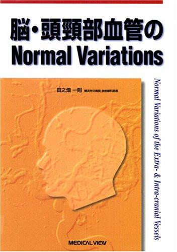 脳・頭頸部血管のnormal variations