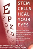 img - for Stem Cells Heal Your Eyes: Prevent and Help: Macular Degeneration, Retinitis Pigmentosa, Stargardt, Retinal Distrophy and Retinopathy book / textbook / text book