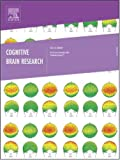 The effects of prime visibility on ERP measures of masked priming [An article from: Cognitive Brain Research]