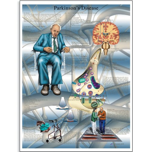 3B Scientific Glossy Paper Parkinson's Disease Anatomical Chart - 1