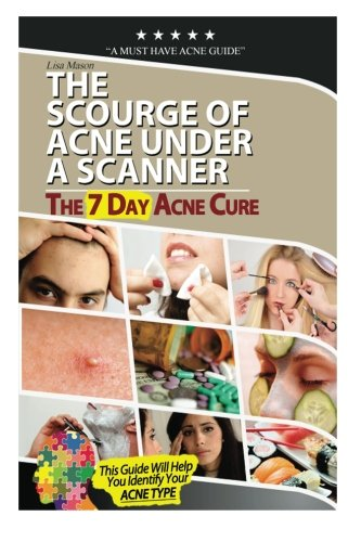 The Scourge Of Acne Under A Scanner: The7Dayacnecure