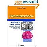 Prostatakarzinom: Alternativen zur radikalen Operation Ein Ratgeber für Betroffene, Ärzte und medizinisch interessierte...
