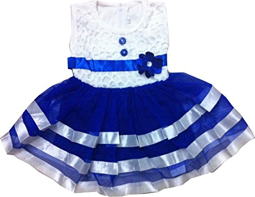 Cute Fashion Kids Girls Baby Princess Party Dresses Skirt Clothes sets 18 - 24 Months