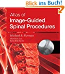Atlas of Image-Guided Spinal Procedures