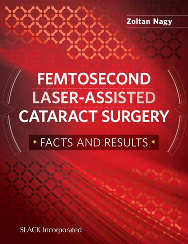 Femtosecond Laser-Assisted Cataract Surgery: Facts And Results