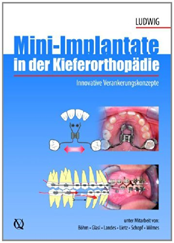 Mini-implants in Orthodontics: Innovative Anchorage Concepts PDF