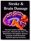 STROKE & BRAIN DAMAGE: Thrombi, Emboli, Transient Ischemic Attacks, Hemorrhage, Aneurysms, Athersclerosis, Subtle Symptoms, Localization of Brain Injury, ... Visual Perception, Physical Sensation...