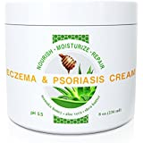 Wild Naturals Eczema & Psoriasis Cream with Manuka Honey + Aloe Vera + Shea Butter + Coconut Oil + Hemp Seed Oil, 8 oz.