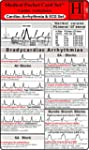 Cardiac Arrhythmia and ECG - Medical...