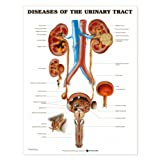 Diseases of the Urinary Tract Anatomical Chart Laminated