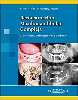Reconstrucción maxilomandibular compleja (Spanish Edition) (Spanish