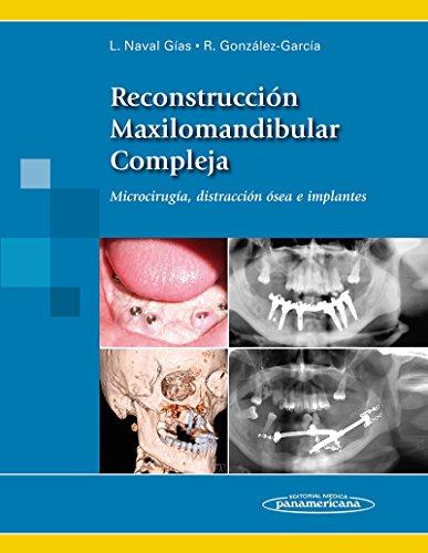 reconstruccion-maxilomandibular-compleja-reconstruction-maxillomandibular-complex-microcirugia-distr