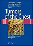 img - for Tumors of the Chest: Biology, Diagnosis and Management book / textbook / text book