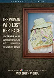 The Woman Who Lost Her Face (Enhanced Edition): How Charla Nash Survived the World's Most Infamous Chimpanzee Attack