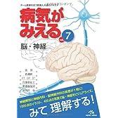 病気がみえる 〈vol.7〉 脳・神経 (Medical Disease:An Illustrated Reference)