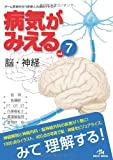 病気がみえる 〈vol.7〉 脳・神経 (Medical Disease:An Illustrated Reference) -