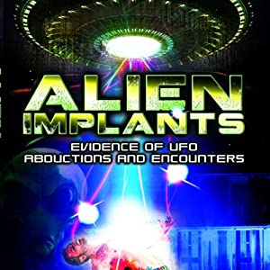 Alien Implants: Evidence of UFO Abductions and Encounters | [Jason Martell]
