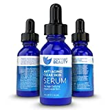 Significant Beauty Anti Aging Clear Skin Facial Serum with 20% Vitamin C - 1 Oz. BEST NATURAL serum - Better than face, neck & eye creams or moisturizers for your blemishes, dark spots & wrinkles. For day, night, men & women - With Retinol, B3, MSM.