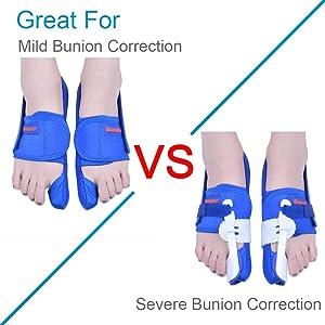 Bunion Corrector [Pair] - Improved Bunion Splint Big Toe Straightener Separators for Hallux Valgus Pain Relief Fits Men & Women (Color: Blue)