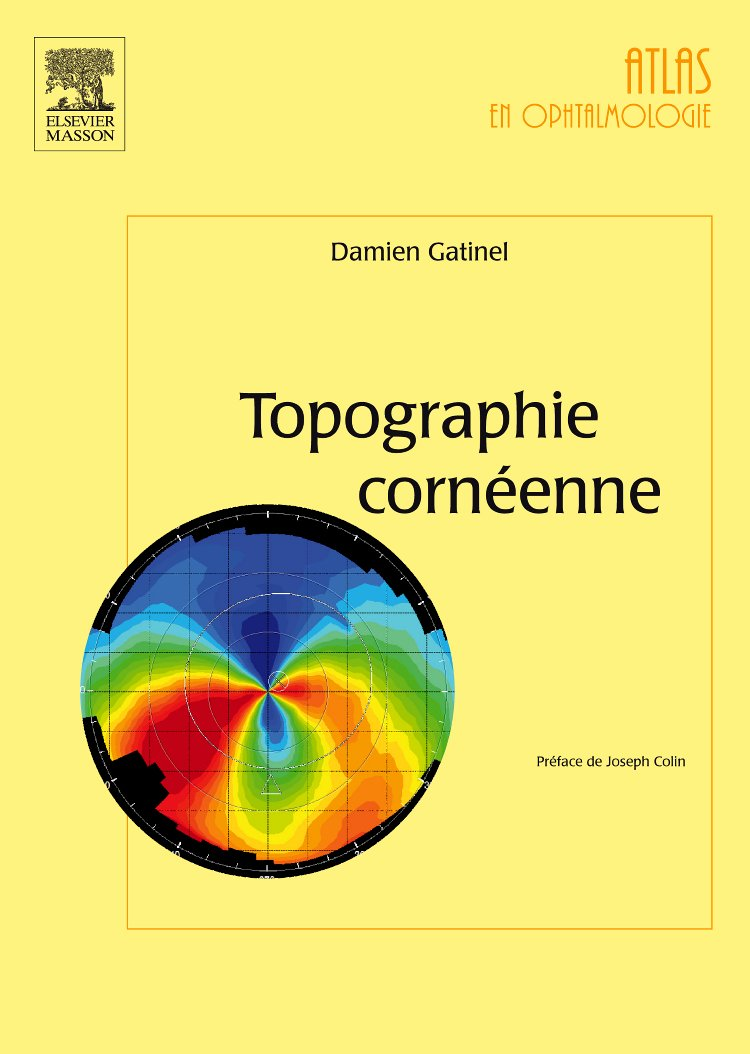 Topographie cornéenne prix