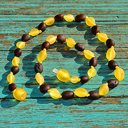 Baby Necklace From Genuine Baltic Amber - Not Polished - Safety Knotted