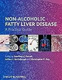 Non-Alcoholic Fatty Liver Disease: A Practical Guide