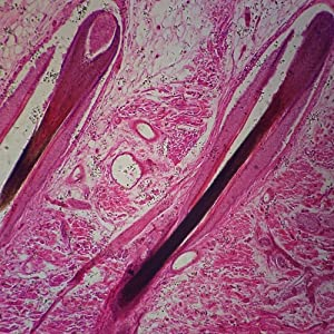 Human Mammary Gland Lactating Microscope Slide