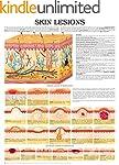 Skin lesions e chart: Full illustrated