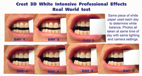 Отбелить зубы перекисью водорода отзывы