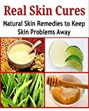 Real Skin Cures: Natural Skin Remedies to Keep Skin Problems Away: (skin care, skin care recipes, skin care products, natural skin remedies)