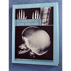 Radiology of Bone Diseases