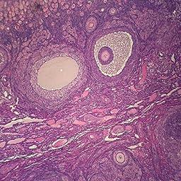 Mammal Graafian Follicles, sec. 7 m H&E Microscope Slide