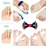 Bunion Corrector, Toe Separators Spacers Straighteners 9 Pieces- Bunion Relief Cure Pain in Big Toe Joint, Tailors Bunion, Hallux Valgus, Hammer Toe,