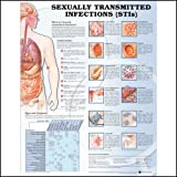 Sexually Transmitted Infections (STIs) Anatomical Chart Paper Unmounted