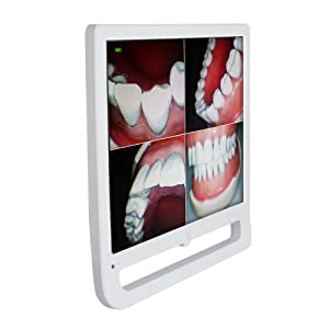 High Resolution 17 Inch 10 Million Pixels WiFi Digital LCD AIO Monitor I-n-t-r-a o-r-a-l Camera Multimedia Input