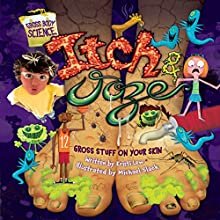 Itch & Ooze: Gross Stuff on Your Skin Audiobook by Laura Christin Lewandowski Narrated by  Intuitive